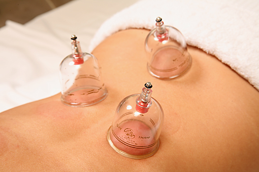 cupping treatment session